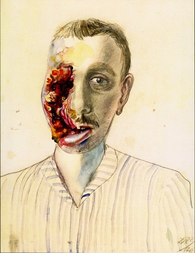 Otto Dix, Wounded Veteran, 1922. Watercolor and pencil, 19 1/4 x 14 1/2 inches.