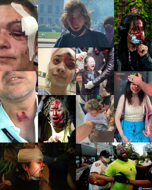 Montage of photographs of journalists, peaceful protesters, and bystanders brutalized by police forces at Black Lives Matter demonstrations, 2020.